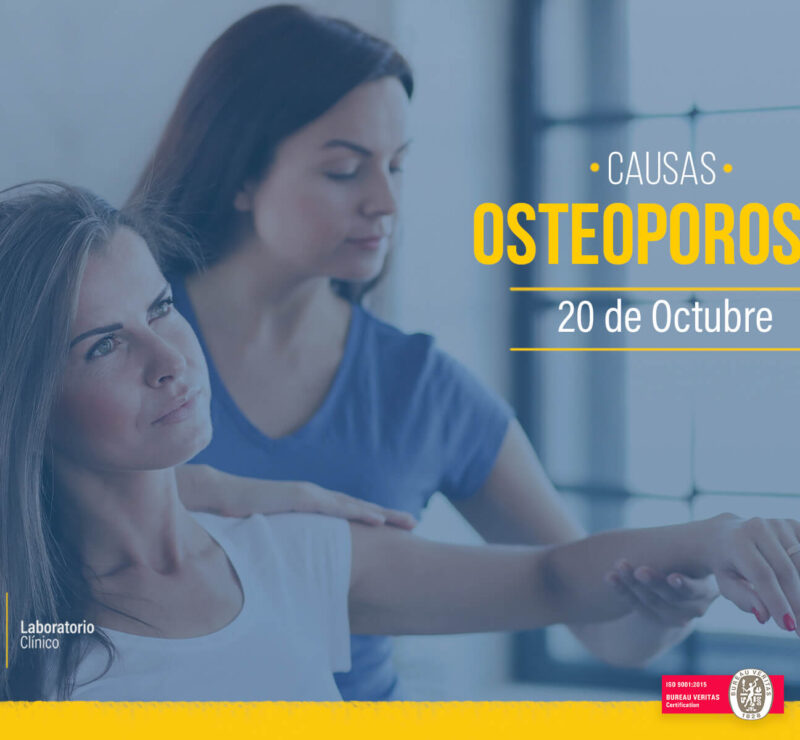 osteoporosis_mundial_neolab_laboratorio_clínico