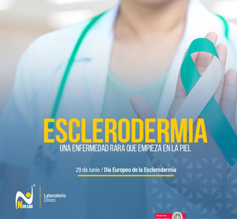 esclerodermia_neolab_laboratorio_clínico_día_mundial